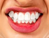 picture of growl  - Bruxism - JPG