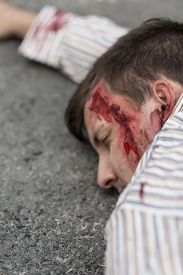 stock photo of accident victim  - Victim of terrorist attack lying on the street - JPG