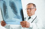 Older Doctor Examines X-ray Image Of Lungs