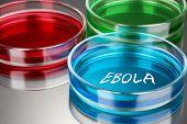 Ebola virus disease
