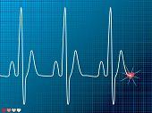 Постер, плакат: Heart Beat медицинские темный