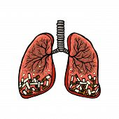 Hand Drawn Cigarettes In Human Lungs. Unhealthy Habit Smoking Concept. Color Sketched Vector Illustr poster