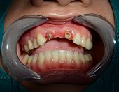picture of inflamed  - After removing ceramic bridge of anterior upper teeth - JPG