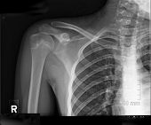 stock photo of radiogram  - teen shoulder and ribs xrays right side - JPG