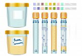 Urinalysis Yellow Cap Tubes Set, Empty, Filled, Frozen And Dipstick