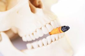 picture of smoke  - Smoking kills Stop smoking - JPG