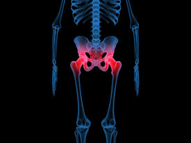 stock photo of head femur  - 3d illustration of radiography of the hip and femur bones - JPG
