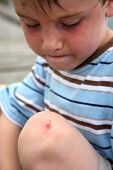 Young boy looking at a scrape on his knee