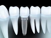 stock photo of human teeth  - Tooth human implant  - JPG