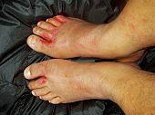 Injured feet