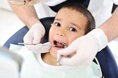 stock photo of dentist  - Teeth checkup at dentist - JPG
