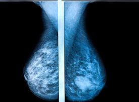 foto of mammography  - mammography breast scan X - JPG