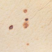 picture of birthmark  - Close - JPG