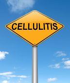 Cellulitis Concept.