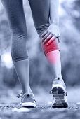 Постер, плакат: Muscle injury woman running clutching calf muscle after spraining it while out jogging on the beac