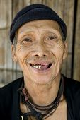 Laughing Old Man With Bad Teeth, Laos