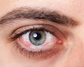 pic of hematoma  - Close Up of irritated red blood eye - JPG