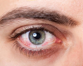stock photo of irritated  - Close Up of irritated red blood eye - JPG