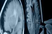 caneta mostrando fotos de raio-x do cérebro na tela