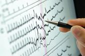 stock photo of ecg chart  - analyzing medical graph on screen - JPG