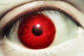 Red Blood Eye