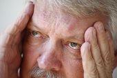 Senior man with headache closeup