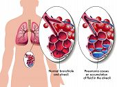 stock photo of cardiovascular  - medical illustration of the effects of the pneumonia - JPG