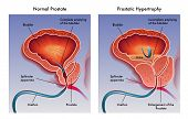 stock photo of bladders  - Illustration of the effects of prostatic hypertrophy - JPG