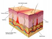 pic of collagen  - medical illustration of the process of formation of red stretch marks - JPG