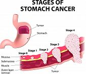 Staging of stomach cancer