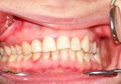 image of gingivitis  - Malocclusion - JPG