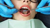 Routine Examination At Dentist. Young Girl With Open Mouth. White Teeth. Dentist Hands In Protective poster