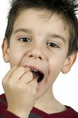 image of crooked teeth  - Little boy shows a broken tooth - JPG