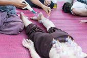 Leg And Back Skin Vacuum, The Chinese Alternative Medicine