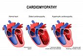 Types Of Heart Diseases: Hypertrophic Cardiomyopathy And Dilated Cardiomyopathy. Healthy Heart And H poster