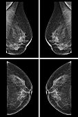 foto of tumor  - Lateral mammogram of female breast - JPG