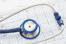 pic of ekg  - Stethoscope with ekg cardiograms chart  - JPG