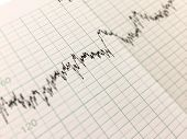 Printing Of Cardiogram Graph Report, Electrocardiography, Close-up poster
