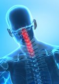 Pain In Cervical Spine Concept