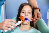 Little girl with open mouth receiving dental filling drying procedure.