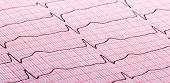 pic of electrocardiogram  - cardiogram (aka electrocardiogram aka ECG) of heart beat on red paper