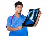 Doctor look at x ray film