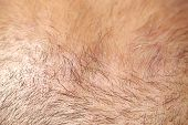 pic of scalping  - ultra close up shot of the scalp thin hair - JPG