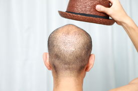 foto of bald headed  - back shot of man of bald man with a hat - JPG