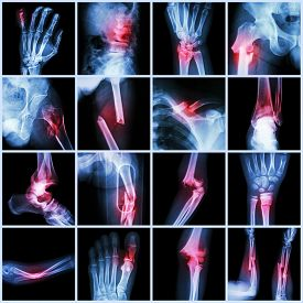 picture of fracture  - Collection X - JPG