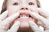 picture of bad teeth  - Dental medicine and healthcare  - JPG