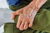 Left Hand Of A Leprosy