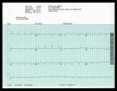 Real Abnormal Ekg
