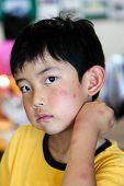 stock photo of epidemic  - Boy with multiple mosquito bites on face and arm - JPG