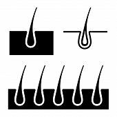 picture of scalping  - Simple Hair Follicle Icons Set - JPG